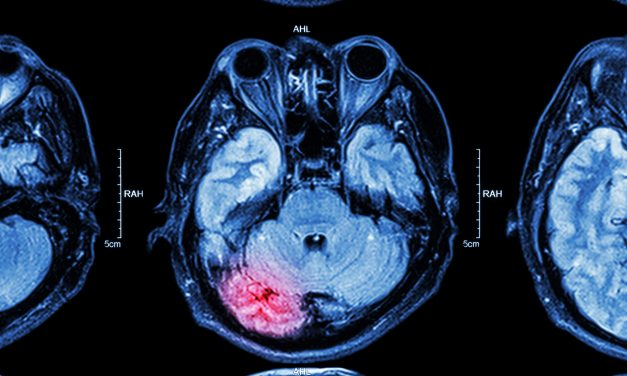 This Is Your Brain On Drugs: Research Shows Weed Can Be Beneficial For Serious Brain Injuries